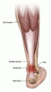 pijn in de beenspieren
